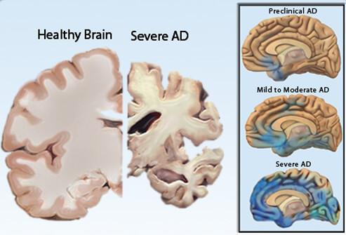 Alzheimer Brain